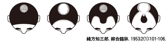 ミノキシジルの対応できるタイプ
