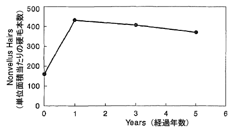 ミノキシジル長期使用の結果